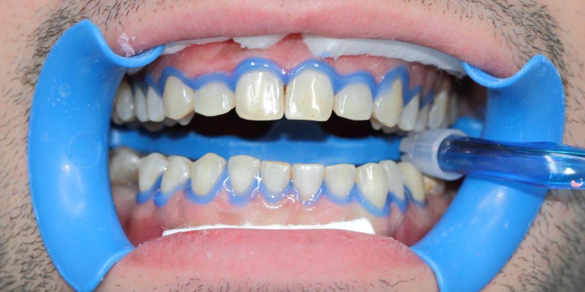 sbiancamento dentale dentista cherasco